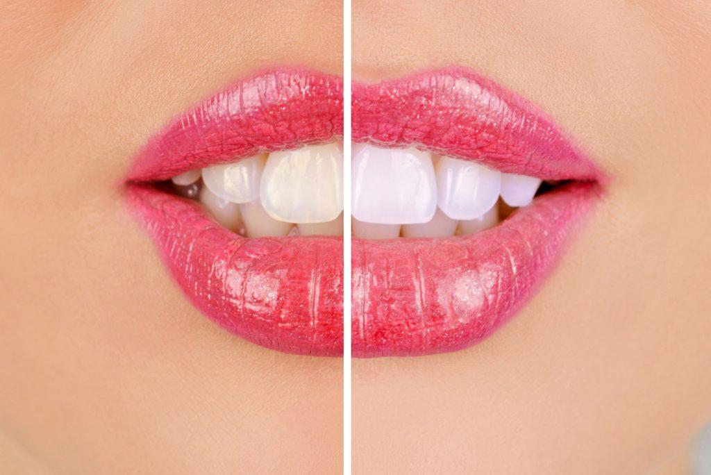 Foto detalle de de una boca femenina, la imagen está dividida horizontalmente, en la parte izquierda se ve la boca en su estado inicial y en la derecha el resultado aplicando carillas dentales de porcelana