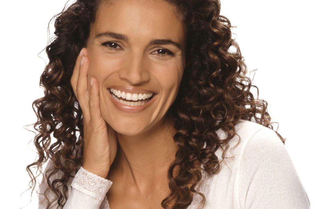 Primer plano de una mujer sonriendo con un dispositivo de ortodoncia Damon puesto