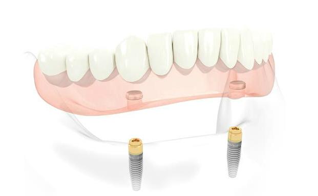 Prótesis dentales para reponer todas las piezas: Dentadura sobre implantes