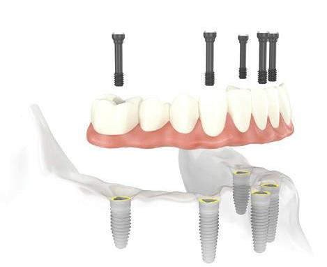 Prótesis dentales para reponer todas las piezas:  Prótesis híbrida