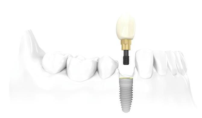 Prótesis dentales de una sola pieza: Implantes unitarios