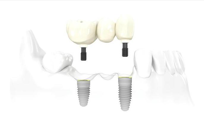 Prótesis dentales para varias piezas adyacentes: Puente sobre implantes