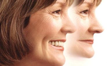 Foto de una mujer en la que se ve su rejuvenecimiento tras un tratamiento de implantes dentales