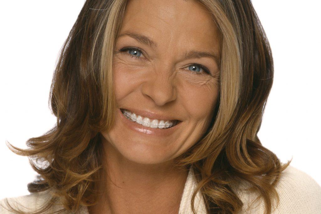Primer plano de una mujer madura sonriendo con un dispositivo de ortodoncia Damon puesto