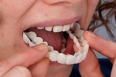 Primer plano de una paciente colocandose la dentadura provisional para poder probar su tratamiento de estética dental