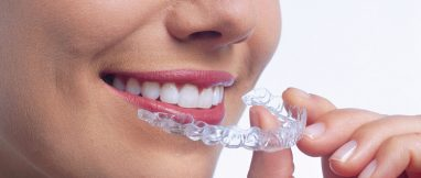 Primer plano de una mujer extrayendo de su boca una férula de ortodoncia invisible Invisialign®